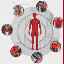 Krankheitsbild - Arm an Blut – arm an Sauerstoff: Um den lebenswichtigen Sauerstoff zu den Zellen transportieren zu können, benötigt der Körper rote Blutkörperchen. Bei einer Blutarmut kommt es zur Beeinträchtigung des Sauerstofftransports.